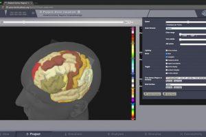 Virtual Brain