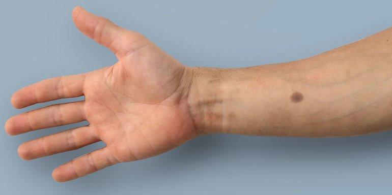 Leberfleck Implantat