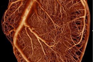 Bildgebende Verfahren DZHK Durchblutungsstörung