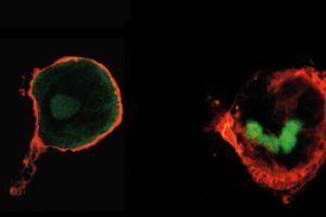 Biologisierte Implantate Martin-Luther-Universität Halle-Wittenberg