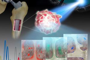 20200907_risiko_Implantate_Metalle.jpg
