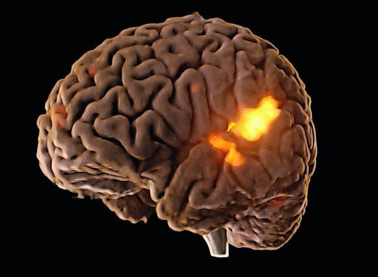 Wenn das Gehirn glüht - medizin&technik - Ingenieurwissen für die ...