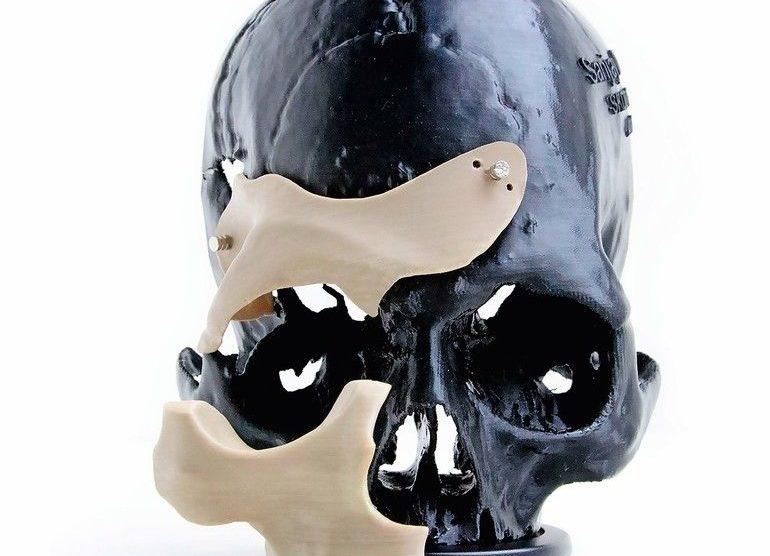 Apium_PEEK_Cranial_Implant.jpg