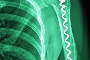 X-ray_image_of_shoulder