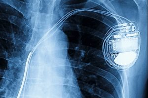 x-ray_image_of_permanent_pacemaker_implant_in_chest_body_,_process_in_blue_tone