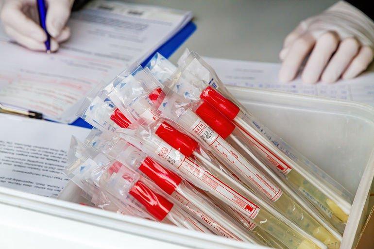 Coronavirus Probenpool test