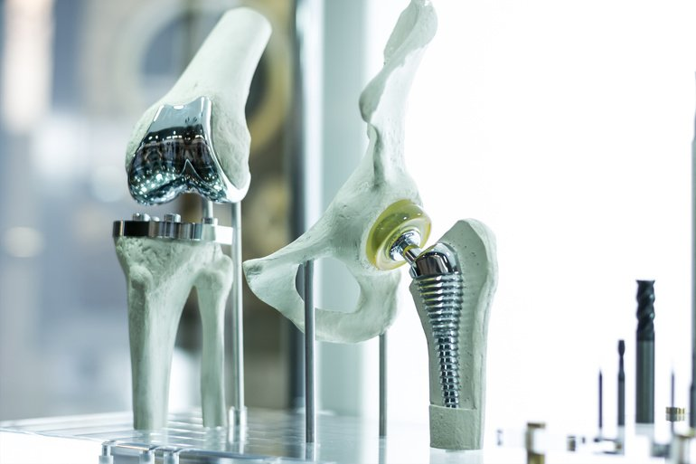 Modern_knee_and_hip_prosthesis_made_by_cad_engineer_and_manufactured_by_3d_printing