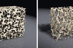 gesunde_Knochenstruktur_und_kranke_Knochenstruktur_(Osteoporose)