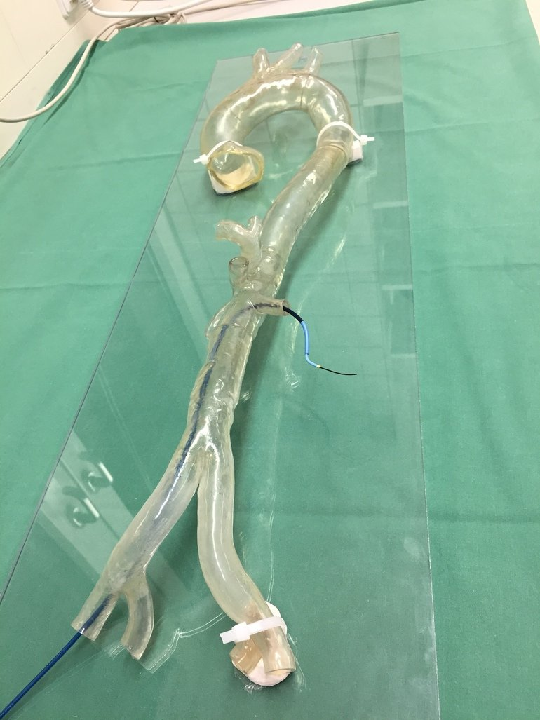 Gefäßchirurgie 3D-Modell
